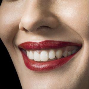 Sourire d'une femme avec des dents blanches et portant du rouge à levres